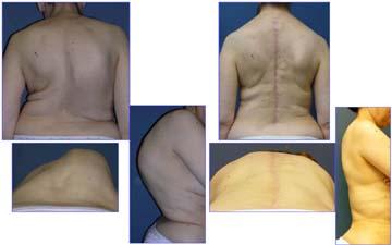vcr-surgery-1c-BB