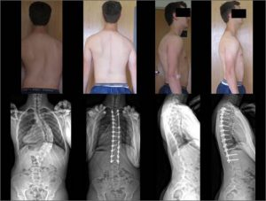 Bryce-before and after spine surgery by Dr. Lenke-for scoliosis