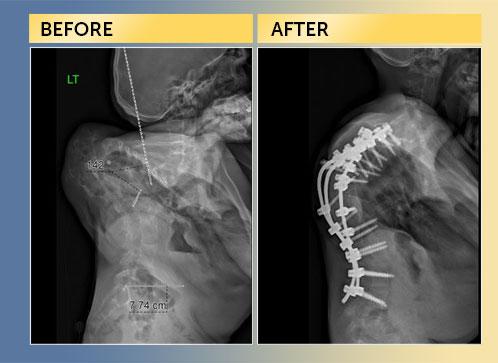 Dr Lenke-Spine Deformity Case-Miqad